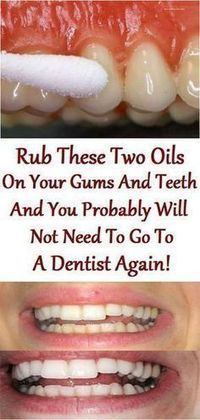 Best oils for your teeth