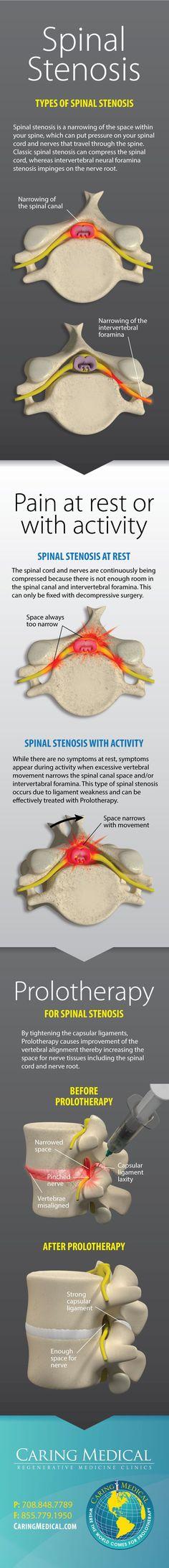 sciatica back pain treatment