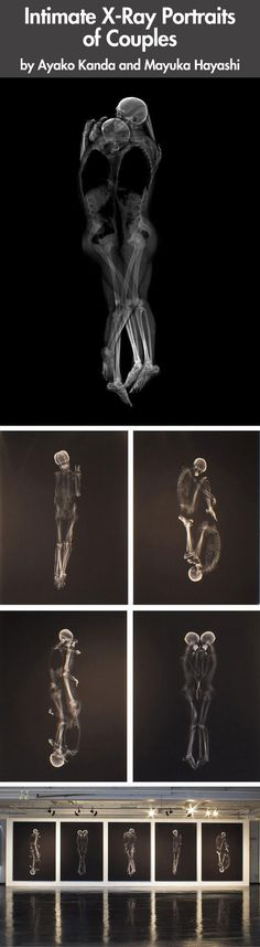 Looks like love after death- x rays of couples holding each other.