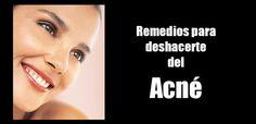 Los 5 Mejores Remedios para Deshacerte del Acné