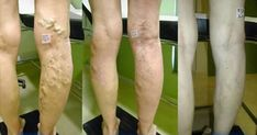 Heal Your Varicose Veins With A Mix Of Aloe Vera, Carrot And Apple Cider Vinegar - Health Living Solution Varicose Vein Remedy, Varicose Veins Treatment, Best Weight Loss, Weight Loss Tips, Aloe Vera, Apple Cider Vinegar Health, Natural Home Remedies, Natural Treatments, The Cure