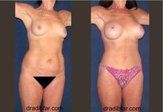 Mommy Makeover - Breast Implants  & Tummytuck
