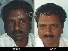 Fairness Treatment Before After - Skin City India