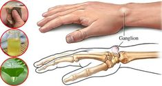 Ganglion cysts are lumps that grow along the joints or tendons of our wrists or hands, and as well as on the ankles and feet. Fortunately, these cysts are non-cancerous . Ganglion, Health And Wellness, Health And Beauty, Health Tips, Black Tea Bags, Fresh Aloe Vera, Muscle Weakness, Anti Inflammatory Recipes, Round Bag