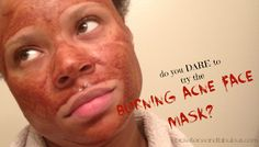 Broke, Fierce and Fabulous: Beauty Blog; Giveaways; Coupon Codes; Deals & More!: Burning Acne Face Mask Anyone? - Clear Up Acne with these 4 DIY Recipes!