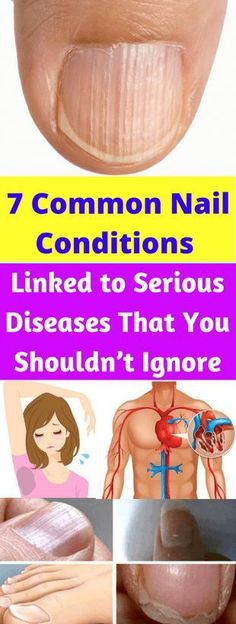 Nails are probably the most ignorant part of our body. Women do take interest to make their nails good attractive, but not much initiative is taken to improve the health of nails. A popular writer …