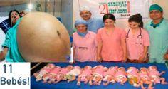 Un milagro que asombró a médicos: ¡Mujer Hindú da a luz a 11 bebés sin cesárea!