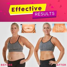 Skin Tightening, Fat Burner, Body Parts, Cellulite, Metabolism, How To Lose Weight Fast, Burns, Thighs, Slim
