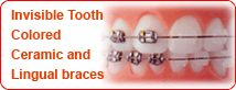 Clear ceramic tooth colored invisible lingual express fast dental braces and orthodontic treatment at Delhi dental braces and orthodontic clinic in New Delhi India. At our Dental Braces Clinic in East Delhi Dental Clinic we provide best price low cost affordable dental braces and orthodontic treatment in Delhi and NCR.
