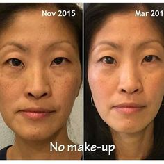 The lovely Cindy Kang used Soothe for her sensitive skin and then worked her way up to Reverse for dark spots. She is loving her smooth and bright complexion!