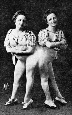 Josefa and Rosa Blažek, conjoined (pygopagus, to be exact) twin sisters and famous sideshow attractions of the 1890s and early 1900s.