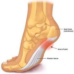Natural Cure For Plantar Fasciitis - How To Cure Plantar Fasciitis Naturally | Find Home Remedy