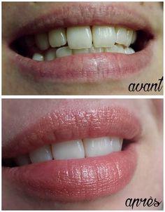 Blanchir ses dents naturellement sans passer par des techniques controversées ou dangereuses c'est possible! Je vous donne aujourd'hui une recette bien plus efficace que le charbon végé…