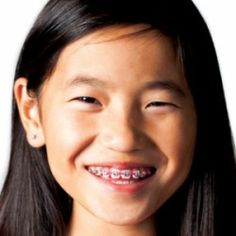 DENTAL BRACES FOR CHILDREN DO'S AND DON'TS