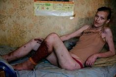 "Consequences of using the Russian drug ""krokodil"""