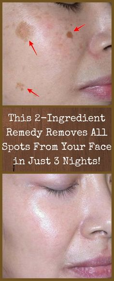 AMAZING: This remedy removes all spots from your face in just 3 nights! AMAZING: This remedy removes all spots from your face in just 3 nights! Health And Beauty Tips, Health Tips, Key Health, Health Guru, Face Care, Body Care, Beauty Care, Beauty Skin, Face Beauty