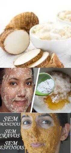 Tenha a pele limpa e livre de manchas e verrugas! #pele #cravos #verruga #beleza #mulher #dicas #dicascaseiras