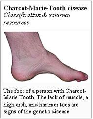 Walking Charcot Marie Tooth Disease | what is genetic disorder - charcot marie tooth disease