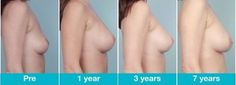 Best breast implant surgeon breast augmentation miami,breast augmentation process breast enlargement exercise with pictures,breast enlargement pictures breast enlargement pills. Enlargement Pills, Implant, Plastic Surgery, Anatomy, Massage, Boobs, Medicine, Health Fitness, Breast