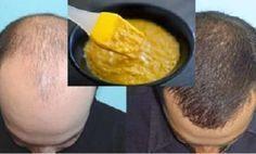 Máscarilla casera extremadamente eficaz para el crecimiento del cabello!
