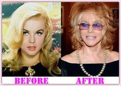 Celebrity Breast Augmentation