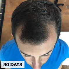 Take your 90 day #hairgrowth #test with our #biotin for #hairloss #shampoo #conditioner #serum #hairmask #sulfatefree #naturalhaircare Biotin Hair Growth, Hair Growth Shampoo, Vitamins For Hair Growth, Hair Growth Tips, Healthy Hair Growth, Biotin For Hair Loss, Natural Hair Growth, Best Hair Loss Treatment, Hair Growth Treatment
