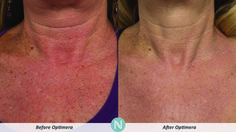 #RealResults from Optimera! http://mncramp.nerium.com