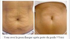 Vous avez la peau flasque après une perte de poids ? Voici comment s'en débarrasser en quelques étapes !