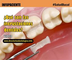 incrustaciones-dentañles