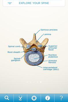 SpineDecide App educates patients on back pain pathology