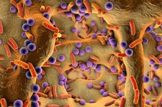 Read about the growing interest in intestinal flora imbalance, also known as…
