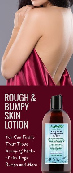 Rough and Bumpy Skin Lotion / You Can Finally Treat Those Annoying Back-of-the- Arm Bumps, little red bumps, chicken skin, rough skin or patchy keratosis pilaris on the back of your arms or thighs.