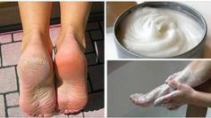 Treat Psoriasis and Get Results in 7 Days Health Remedies, Home Remedies, Natural Remedies, Foot Detox, Healthy Exercise, Best Moisturizer, Fungi, Healthy Tips, Pedicure