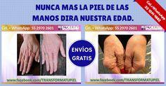 DILE ADIÓS A LAS ARRUGAS, PÉRDIDA DE ELASTICIDAD Y MANCHAS.  Más información para adquirir este maravilloso producto o hacer a través de él un gran negocio, contáctanos llamando al teléfono de nuestras oficinas: En el D.F. (55) 8421 7162, Guadalajara (33) 8421 7100, Tepic (311) 690 3200 o en los cel.+whatsapp: 55 2970 2601 o 33 1014 4882. #Skincerity de #Nucerity #Mexico #TransformaTuPiel  #SkincerityMexico #NucerityMexico #arrugas #flacidez #manchas
