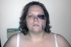 Deaf woman calls 911 as she's beaten black and blue by Washington cops because she didn't hear their orders
