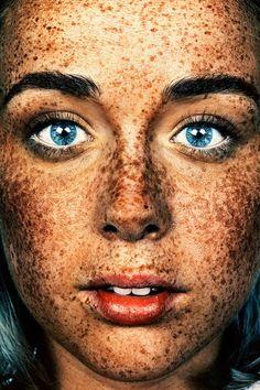 Ein Gesicht ohne Sommersprossen ist wie ein Himmel ohne Sterne Lästig oder süß? Liebe Zeitgenossen, es ist Zeit für Sommersprossen! Viele von Euch kennen es sicherlich: Mit den ersten warmen Sonnenstrahlen s...