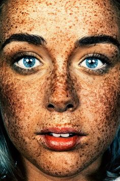 Freckles – Beautiful photographs by Brock Elbank in tribute to freckles