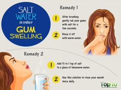 The power of salt for dental health is surprisingly unknown. Use these methods to reduce gum swelling! Practice these methods once in a fortnight to keep your gums healthy and problem free! Sore Gums Remedy, Remedies For Tooth Ache, Cough Remedies, Gum Health, Dental Health, Dental Hygiene, Oral Health, Health Tips, Dental Care