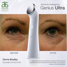 In April Arbonne came out with the new Genius Ultra and we blew through 6 months supply the first 2 weeks!!  SO...Arbonne ramped up production!!  They are now IN STOCK & you can get FREE SHIPPING to your door!! Includes Arbonne's RE9 Advanced Lifting & Contouring Eye Cream & Renewal Serum when you purchase the Genius Ultra! #Arbonne #antiaging #ultherapy