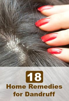 Dandruff can be controlled by following healthy hair care routine. However, it can even be controlled with easy to follow home remedies. It is true that home remedies take time to show results but they can effectively treat the problem completely. 18 Home Remedies for Dandruff - Selfcarers
