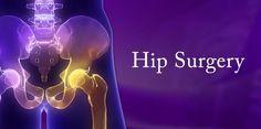 Watch Hip Surgery