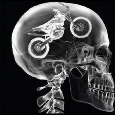 Brooklynn: The Doctor did a x-ray Inside my head and this is what it showed MX on the brain! Awesome!