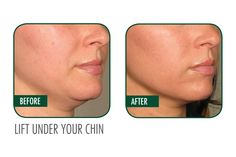 Ultherapy before and after on the chin. #Ultherapy #ChinLift #BalleBliss