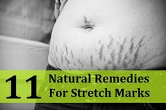 11 Natural Remedies for Stretch Marks  These sound like they could possibly sell well. Just got to do some experimentation to maximize their efficiency.