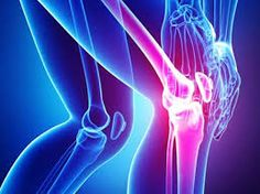 Remedies For Knee Joint Pain There are many options, from medication to surgery, for people who have osteoarthritis pain. Here are 13 natural remedies for osteoarthritis treatment. Natural Remedies For Osteoarthritis, Yoga For Arthritis, Natural Remedies For Arthritis, Knee Arthritis, Natural Headache Remedies, Types Of Arthritis, Juvenile Arthritis, Rheumatoid Arthritis Treatment, Arthritis Relief