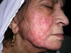 cystic acne can happen at any age
