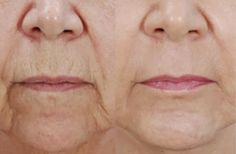 Wrinkles Treatment - Top Five Tips to Remove Wrinkles Naturally The cucumber paste sounds interesting