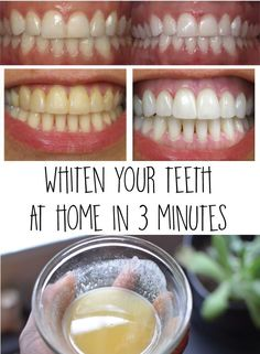 How to Naturally Whiten Your Teeth In 3 Minutes at Home