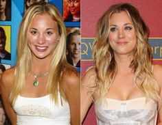 The Big Bang Star Kaley Cuoco Rhinoplasty Before And After Nose Job Rumors Have been Discussed Here. Open this Page to get Kaley Cuoco Rhinoplasty Rumors. Kaley Cuoco, Sarah Jessica Parker, Scarlett Johansson, Victoria Beckham, Tummy Tuck Scar Tattoo, Tummy Tuck Before After, Bad Plastic Surgeries, Celebrity Plastic Surgery, Operation