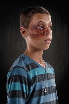 Photo Project Aims To Illustrate The Pain Inflicted By Abusive Language